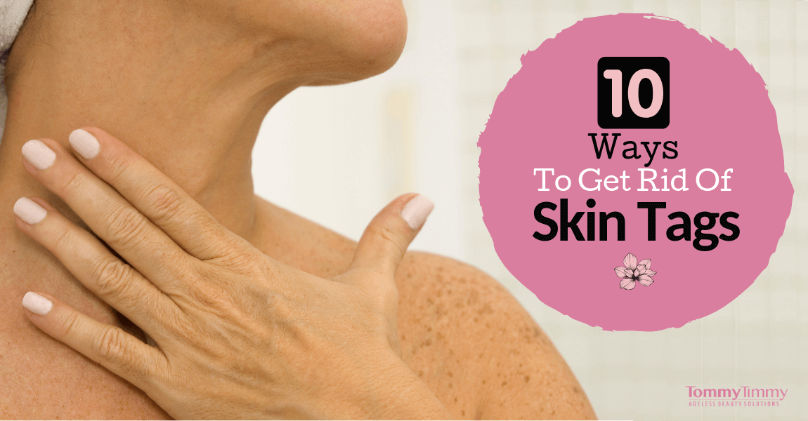 10 Ways to Get Rid Of Skin Tags