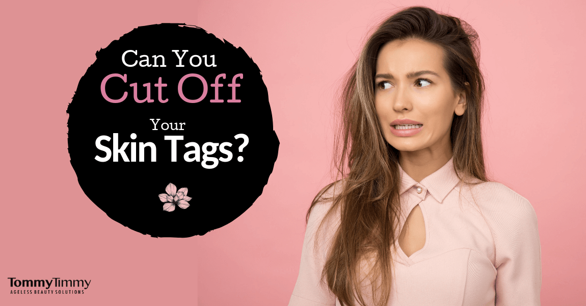 Can you cut off a skin tag?