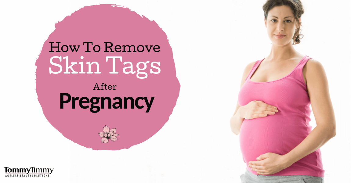 How to remove skin tags during or after pregnancy