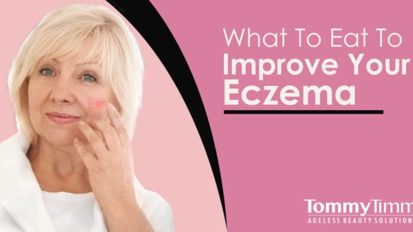 What To Eat To Improve Your Eczema-min