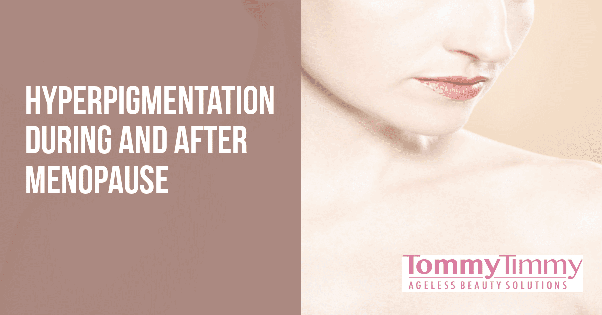 Skin Discoloration During And After Menopause
