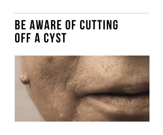 woman with a cyst