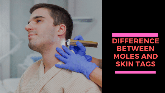 The Difference Between Moles and Skin Tags