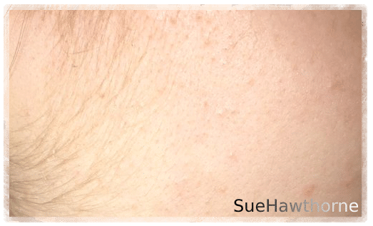 Lanugo Body Hair