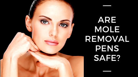 Are Mole Removal Pens Safe?