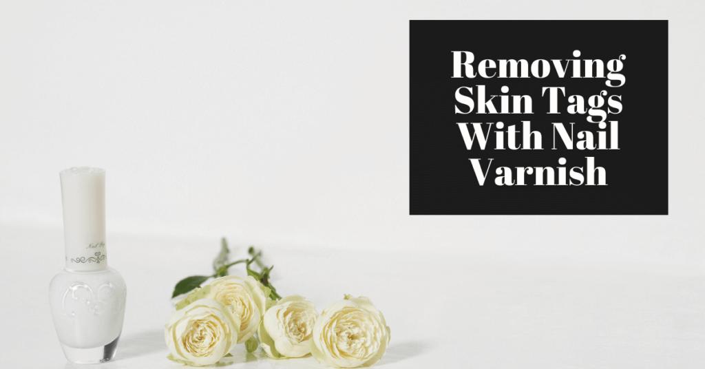 Removing Skin Tags With Nail Varnish