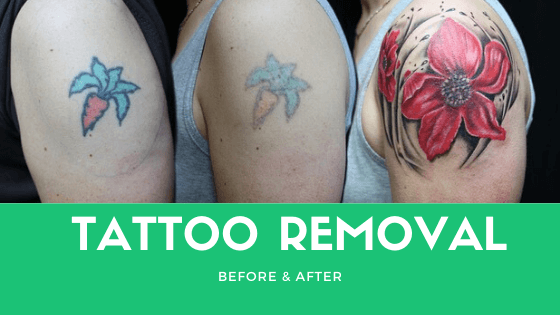 Tattoo Removal Methods