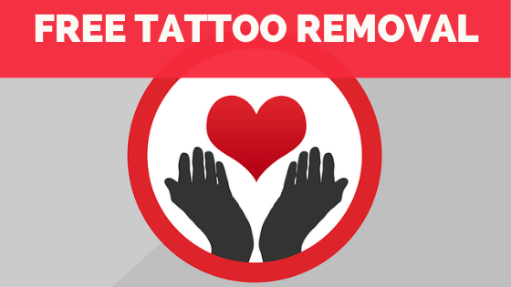 Free Tattoo Removal Services