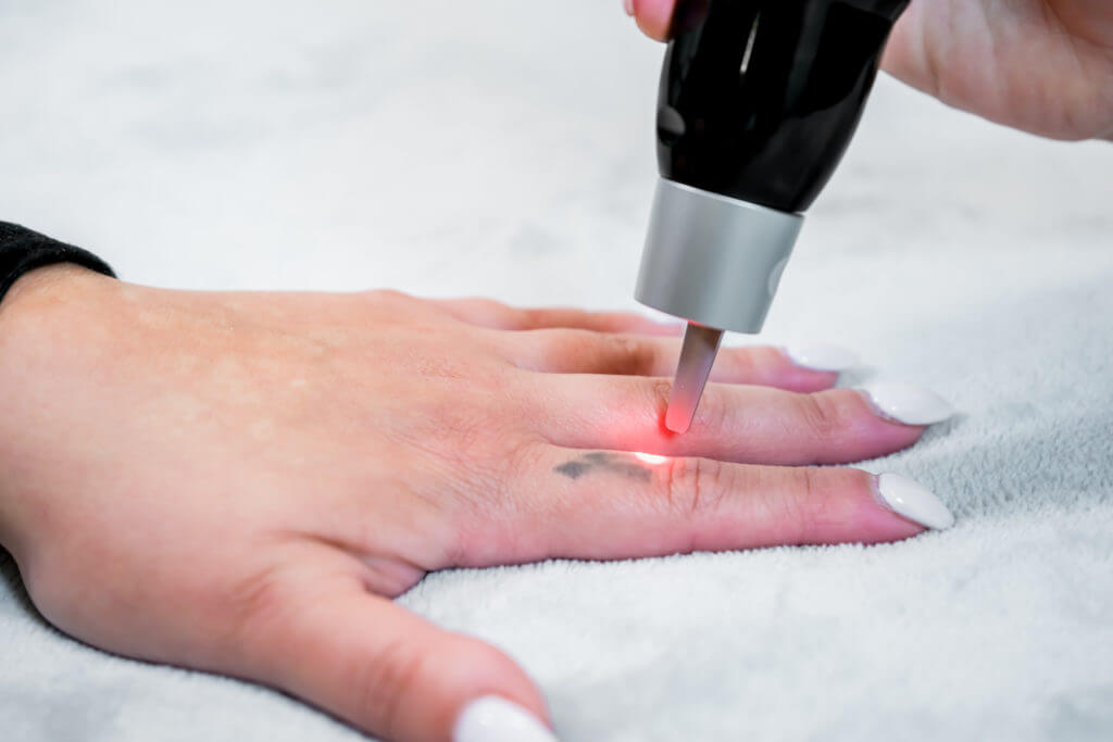 Removal Of Tattoo From Finger With Laser