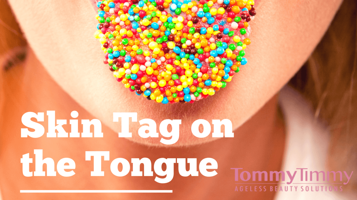 Skin Tag on the Tongue