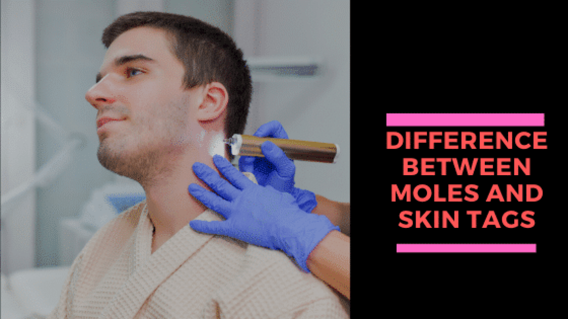 Difference Between Moles And Skin Tags