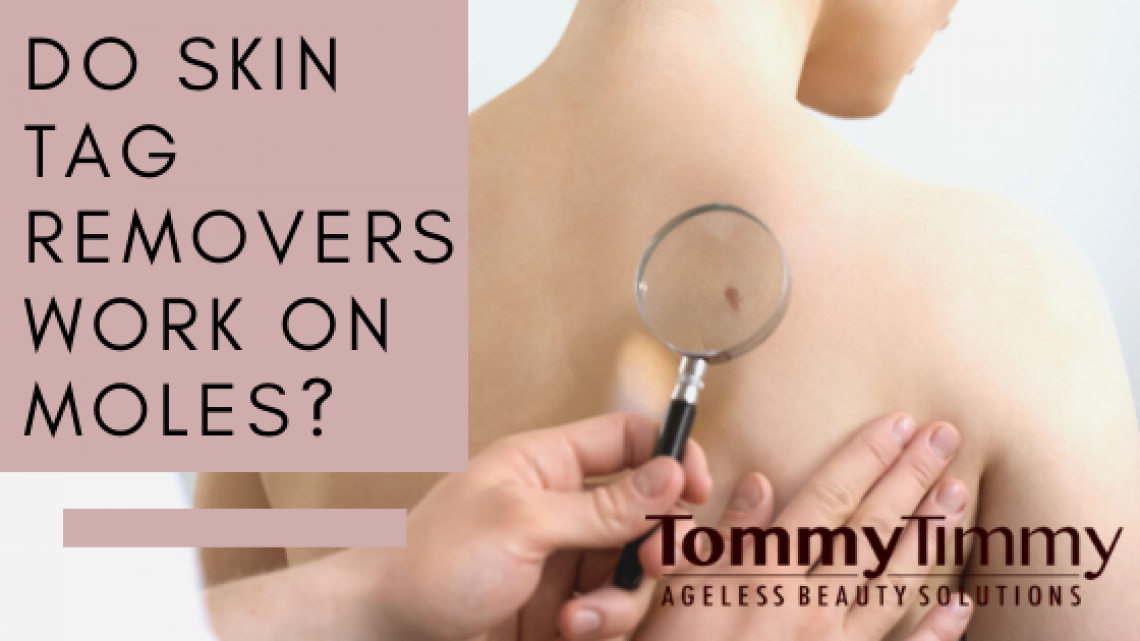 Do Skin Tag Removers Work On Moles_
