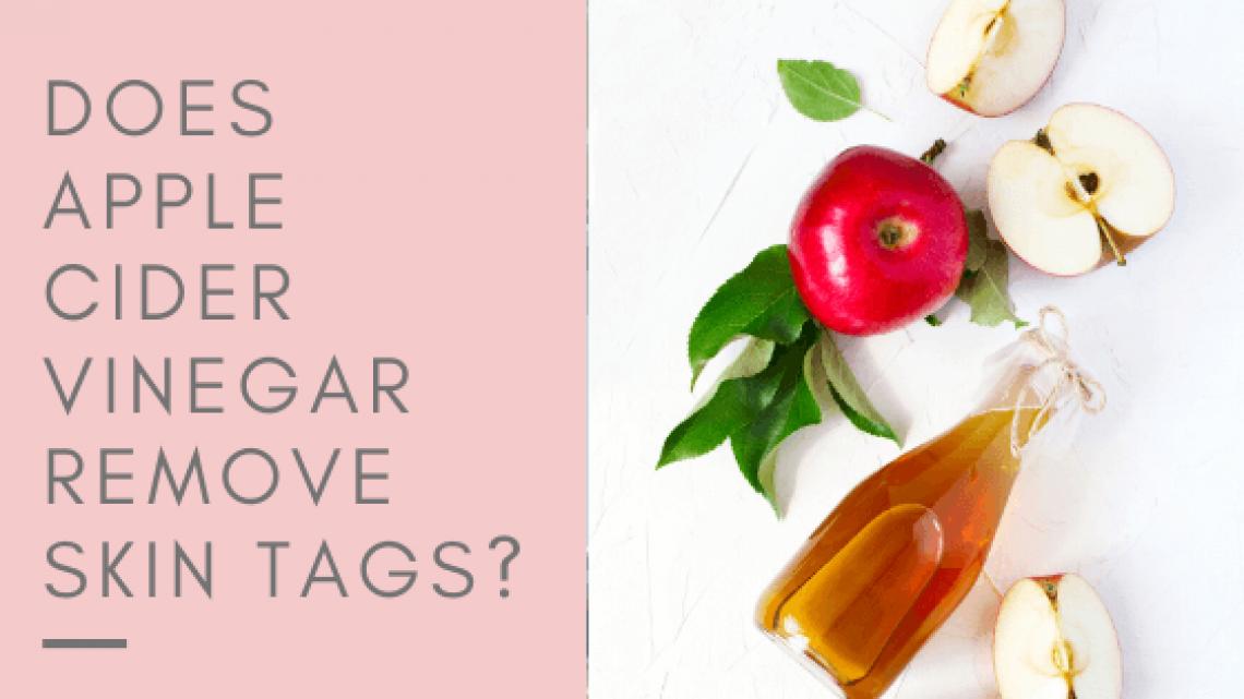 Apple Cider Vinegar Remove Skin Tags?