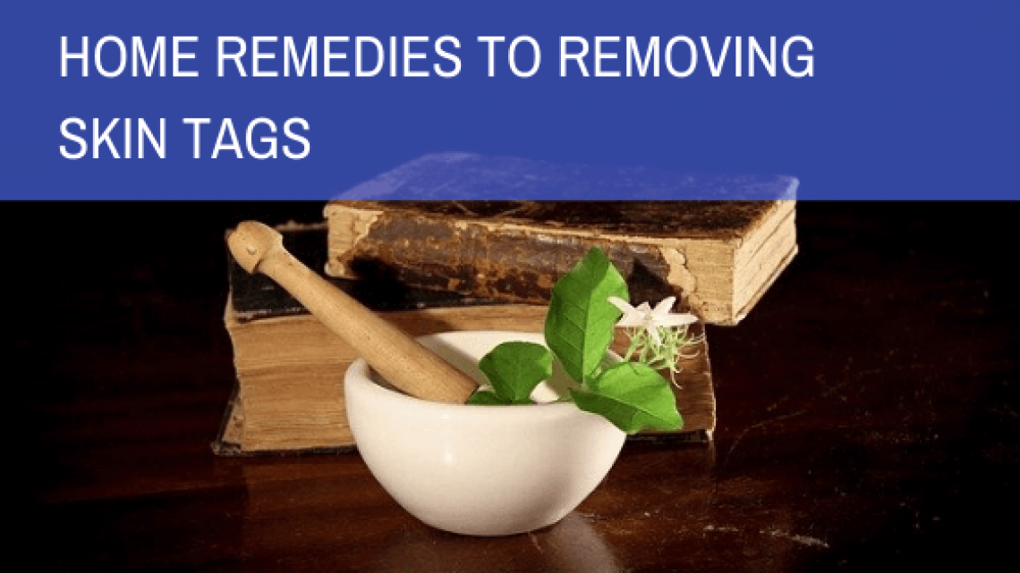 Effective DIY Remedies To Remove Skin Tags