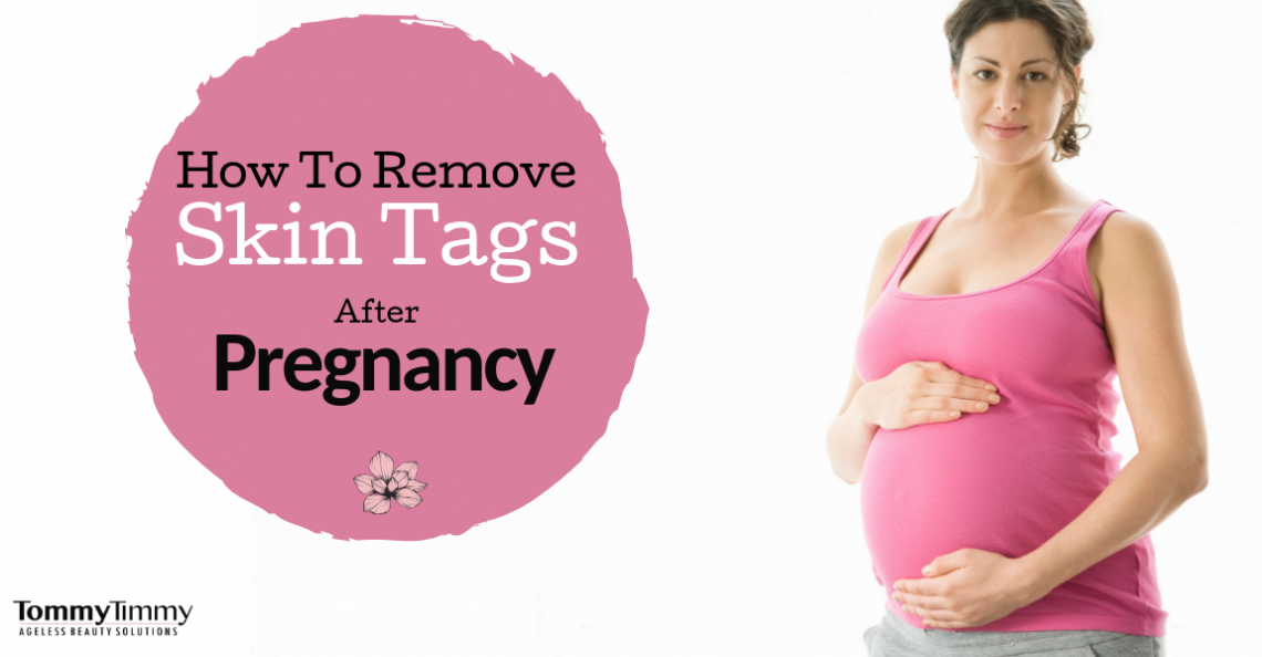 pregnancy and skin tags